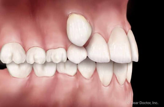 abnormal tooth eruption | orthodontic treatment | orthodontist delaware county