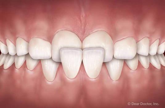 crossbite | orthodontic treatment | orthodontist delaware county
