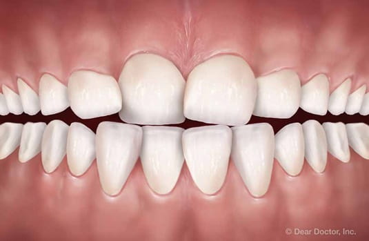 tooth crowdng | orthodontic treatment | orthodontist delaware county