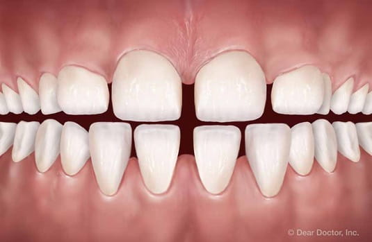 excessive tooth spacing | orthodontic treatment | orthodontist delaware county