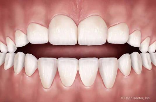 open bite | orthodontic treatment | orthodontist delaware county