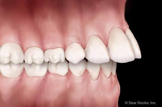 overjet | orthodontic treatment | orthodontist delaware county