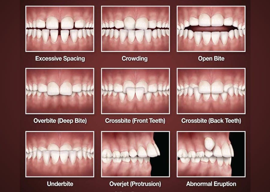 orthodontic treatment | orthodontist delaware county