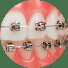 orthodontist springfield | springfield orthodontics