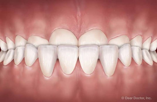 underbite | orthodontic treatment | orthodontist delaware county