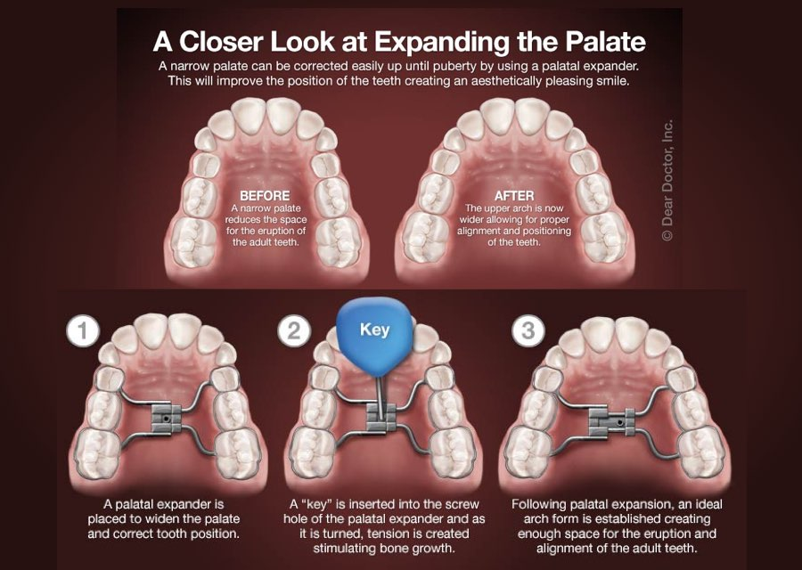 orthodontic treatment |orthodontist delaware county