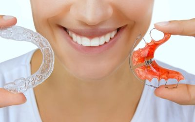 Life After Treatment: How Long Do You Have To Wear A Retainer?
