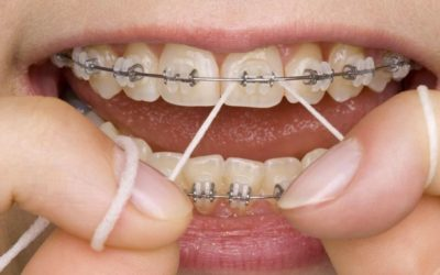 The Importance Of Oral Hygiene During Your Orthodontic Treatment