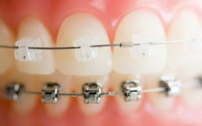 Damon Braces: What Exactly Are They & How Are They Different?