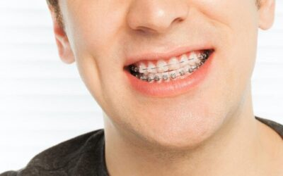 9 Tips On How To Make Your First Week In Braces Easier