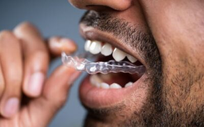 The Different Types Of Retainers After Braces (Plus Pros & Cons)
