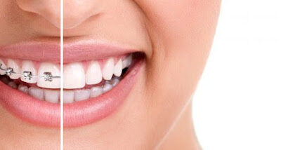 A Simple Breakdown Of The 3 Different Phases Of Orthodontic Treatment